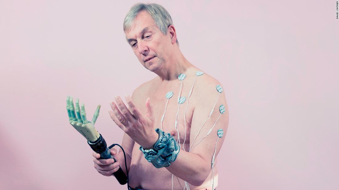 Transhumanisme: Cyborg dan biohackers mendefinisikan kembali cita-cita kecantikan