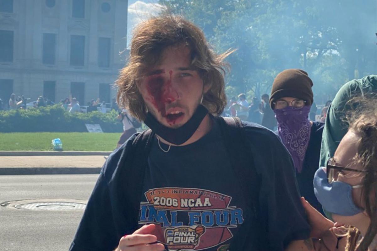 Pengunjuk rasa kehilangan mata setelah diserang oleh tabung gas air mata polisi